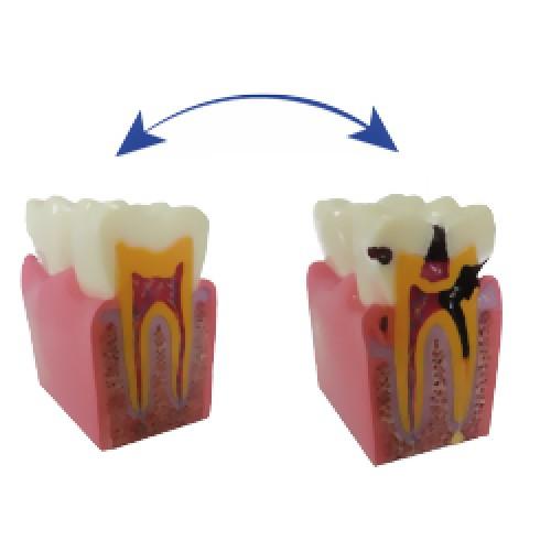 Демонстрационная модель зуба с кариесом Paro