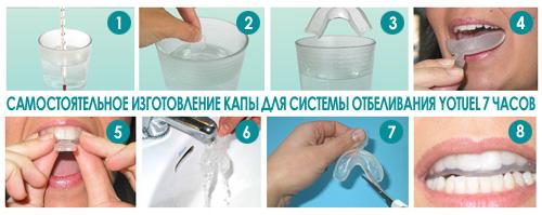 Удаление молочных зубов, все клиники стоматологии в